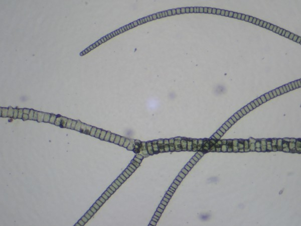Staghorn               algae under the microscope